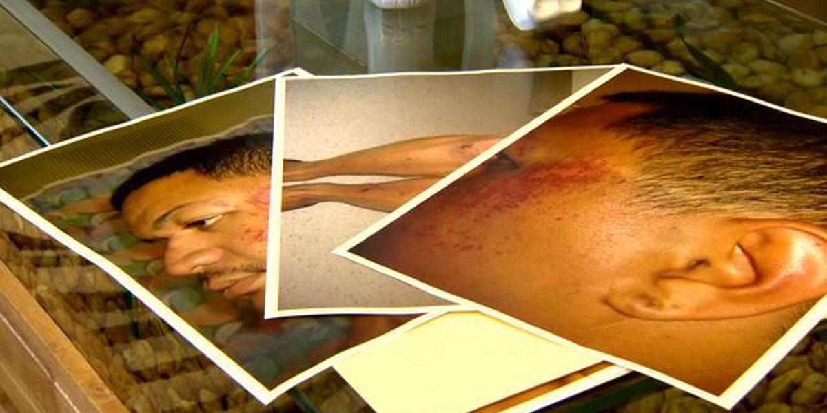 City council committee approves settlement in police brutality lawsuit
