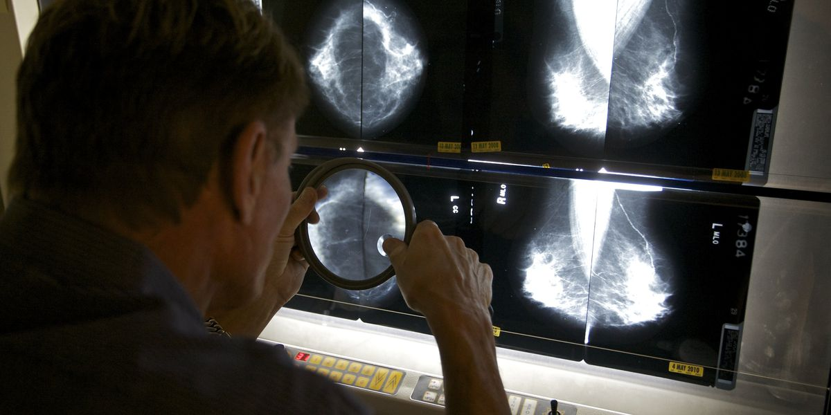 MRIs of dense breasts find more cancer but also false alarms