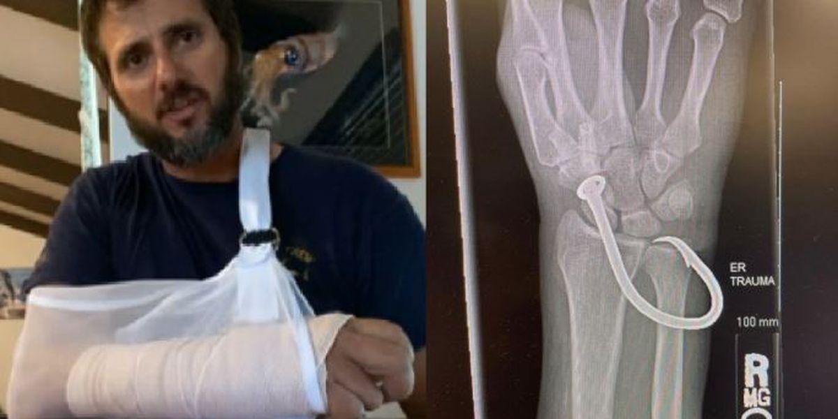 GRAPHIC: Kona fisherman snagged by large hook credits Coast Guard with saving his life