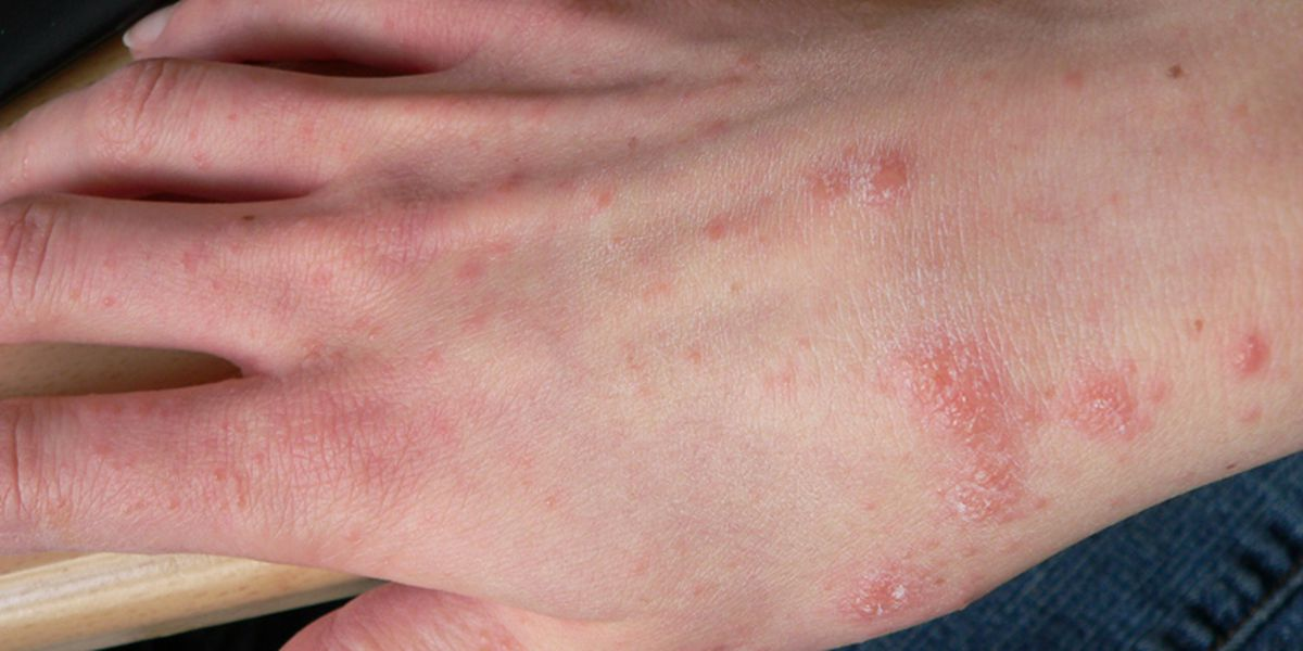 Visitors barred from Kona hospital amid scabies outbreak