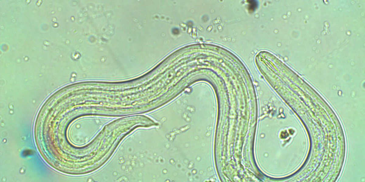 Hawaii investigates cluster of rat lungworm cases linked to kava