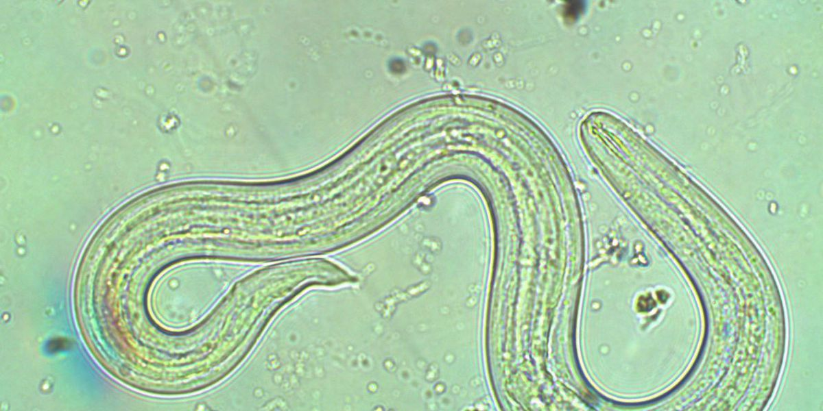 Infant contracts rat lungworm disease, bringing number of cases in Hawaii to 17