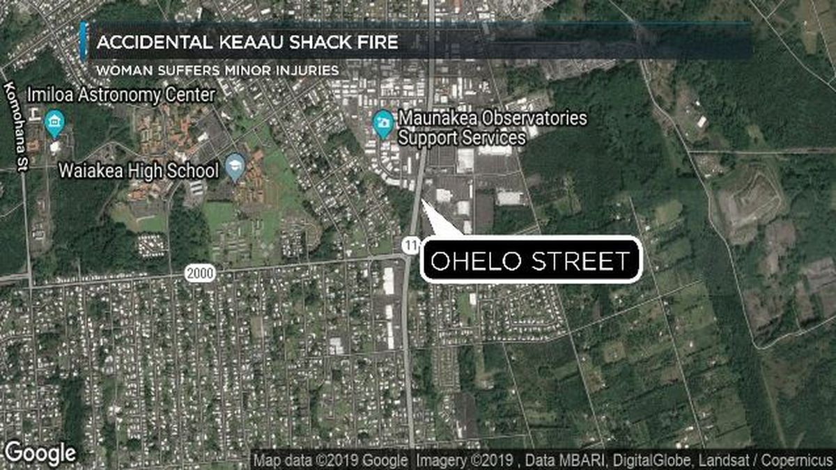Big Island woman suffers minor burns to feet after escaping a fire