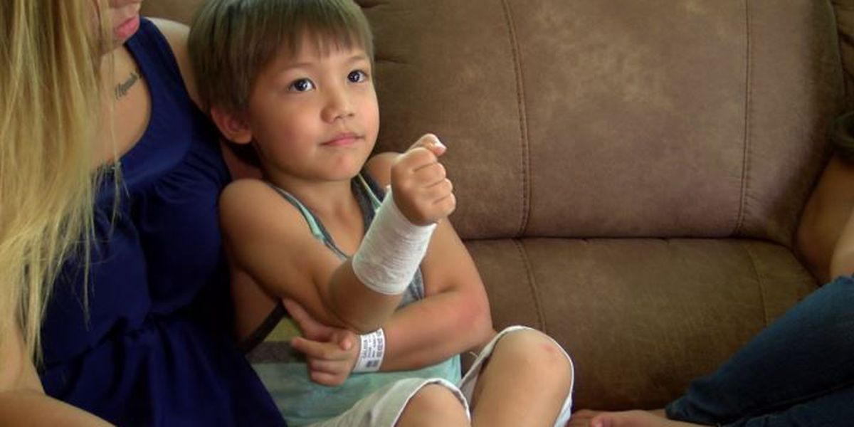 Family livid after 5-year-old burned by hot food at school